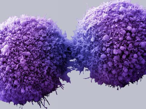 cancer cells - is it cancer?